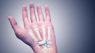 Relief for Carpal Tunnel Without Surgery – 6 Effective Alternatives
