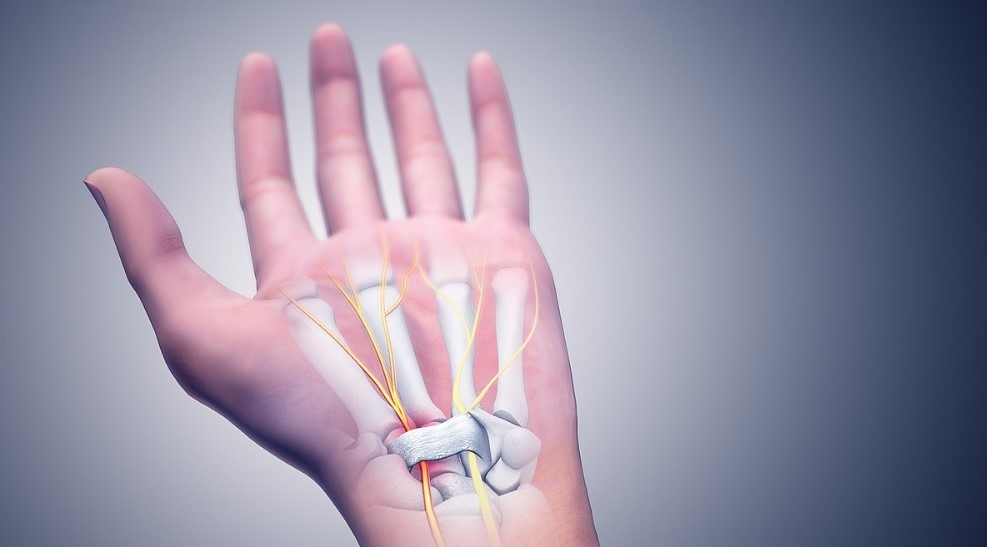 Relief for Carpal Tunnel Without Surgery